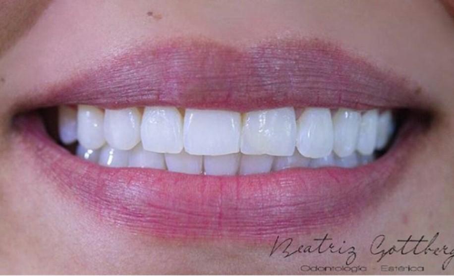 Todo lo que Debes Saber Antes de Tu Blanqueamiento dental
