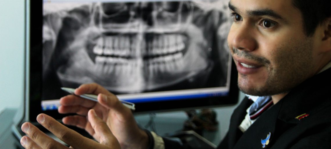 Cirugía de Cordales, terceros molares ó muelas del juicio
